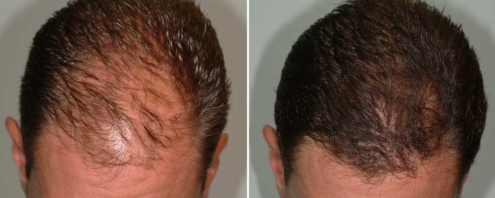 Hair loss surgery before and after rsult images with 4293 grafts